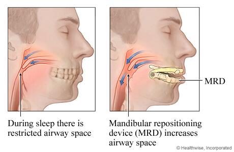 mandibulair repositie apparaat